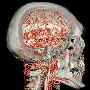 3D-SSD des Gesichtsschädels Darstellung der extrakraniellen und intrakraniellen Hirngefäße