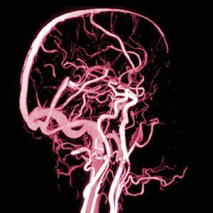 Arterielle und venöse Hirngefäße