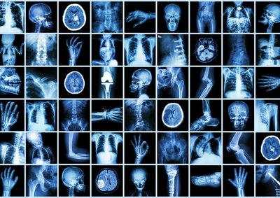 Radiologie Hoheluft Digitales Roentgen