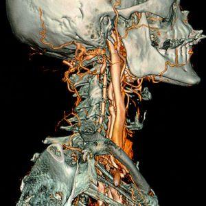 3D-SSD des Halses Darstellung der extrakraniellen Halsgefäße