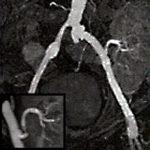 Abgangsstenose einer Transplantatniere
