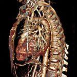 3D-Darstellung der intrathorakalen Organe und des thorakalen Axialskelettes