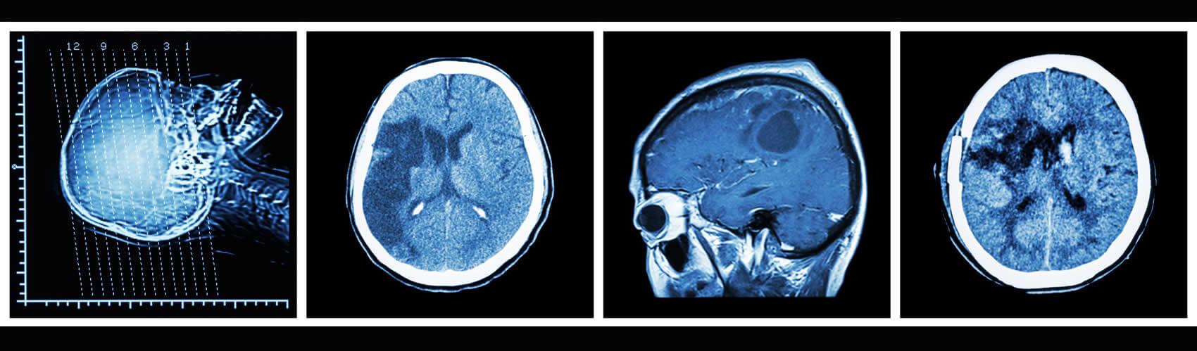 Radiologie Hoheluft Neurologie